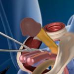 Уникално видео! Вижте как хирурзите превръщат пениса във вагина! Ще се смаете! (16+)