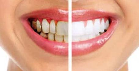 Постоянно имах зъбен камък и давах луди пари за зъболекар. Откакто открих тези 2 съставки обаче, зъбният камък изчезна завинаги