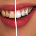 Най-ефективното избелване на зъби в домашни условия. Нужни са само 2 минути дневно