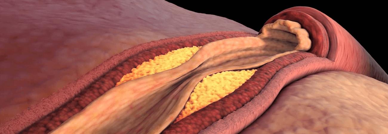 Лекар предупреждава: Високият холестерол води до инфаркт и инсулт