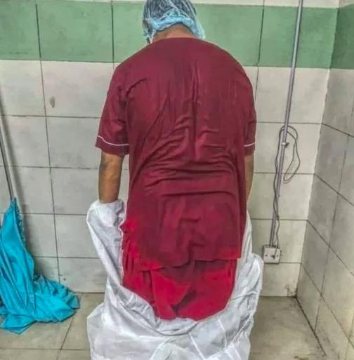 Тази СНИМКА на лекар след смяна в ковид отделение разтърси мрежата