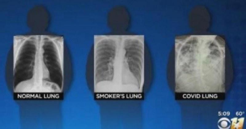 Ето как COVID смила белите дробове – даже при пушачи не е толкова зле! (СНИМКИ)
